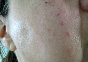 Right cheek 10 days after treatment for sebaceous hyperplasia