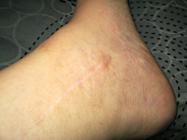Scar on inside of left ankle (1 screw)